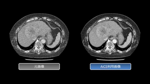 ディープラーニングを活用してCT画像のノイズを除去するCT再構成技術「AiCE」を使った肝臓のCT画像(右)