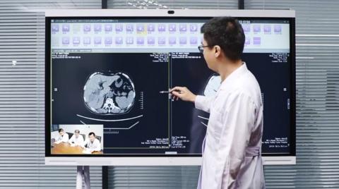 ファーウェイアイデアハブ上で表示されるメディウェイのAI補助PACS(医療用画像管理システム)の様子(画像はファーウェイのニュースリリースから)