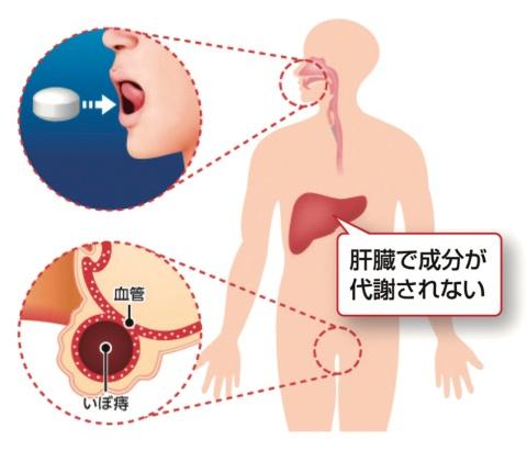 """舌下錠は、舌下粘膜で吸収されて血流に乗った有効成分が、肝臓を通らずに直接""""いぼ痔の根""""に届く"""