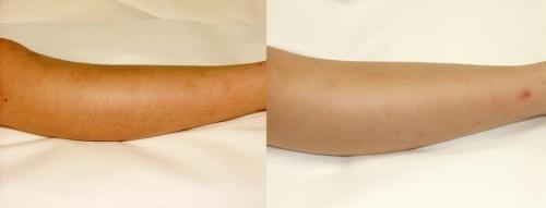 キッズ脱毛の施術例。写真左が処理前。写真右が5回処理をした後のひざ下